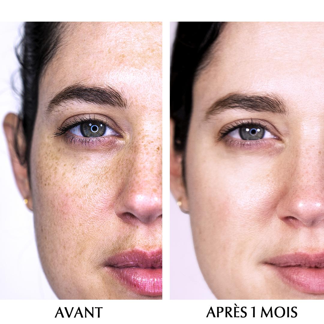 Routine Anti-Pigment Eucerin Retour expérience Anne-Laure Sas-Mayaux annelauresmd